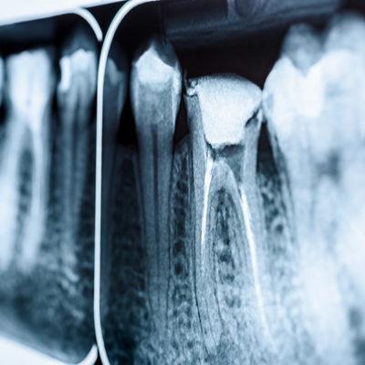 Endodonzia - Studio Dentistico Bernasconi | Dentista Saronno