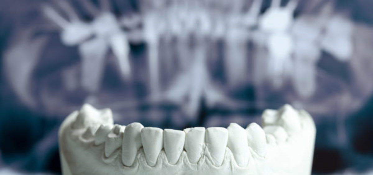 Protesi-Studio Dentistico Bernasconi | Dentista Saronno