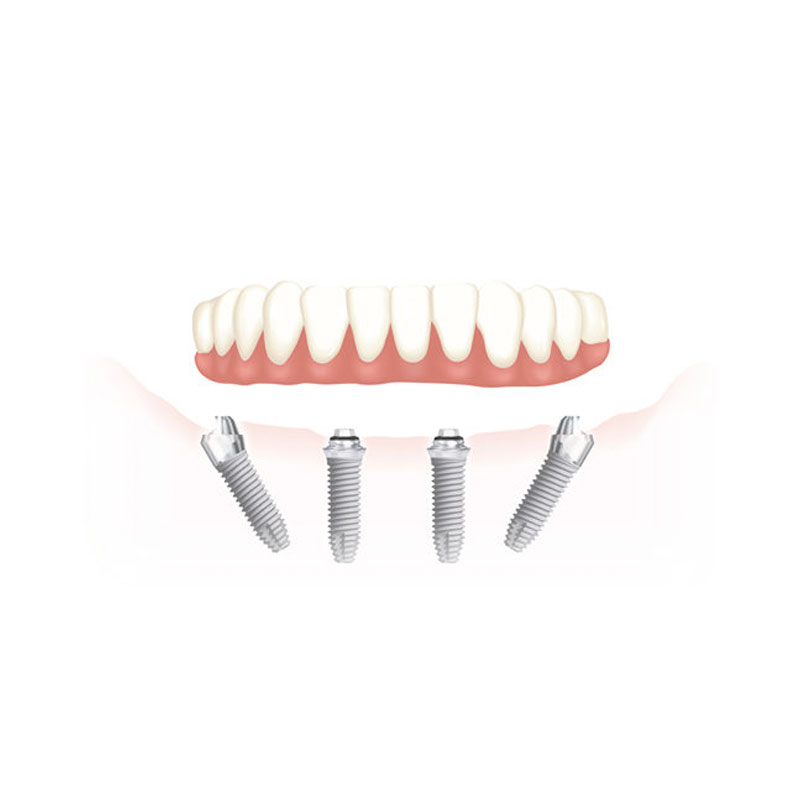 All on four - Studio Dentistico Bernasconi