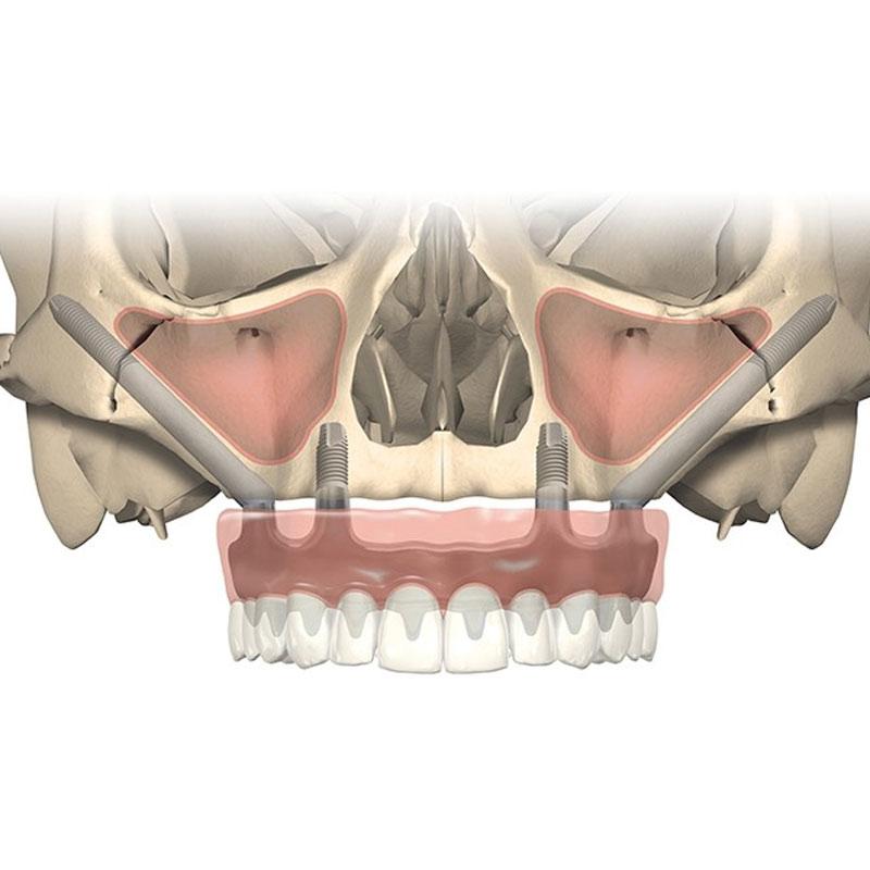 Impianti zigomatici - Studio Dentistico Bernasconi