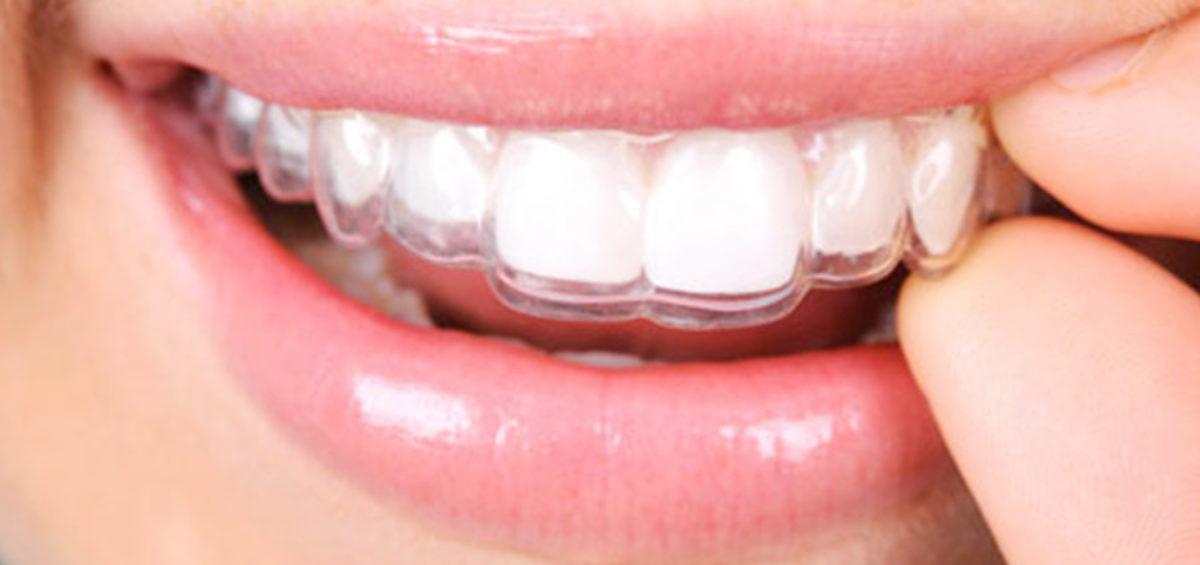 apparecchio trasparente - Studio Dentistico Bernasconi
