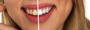 sbiancamento dentale - Studio dentistico Bernasconi | Dentista Saronno